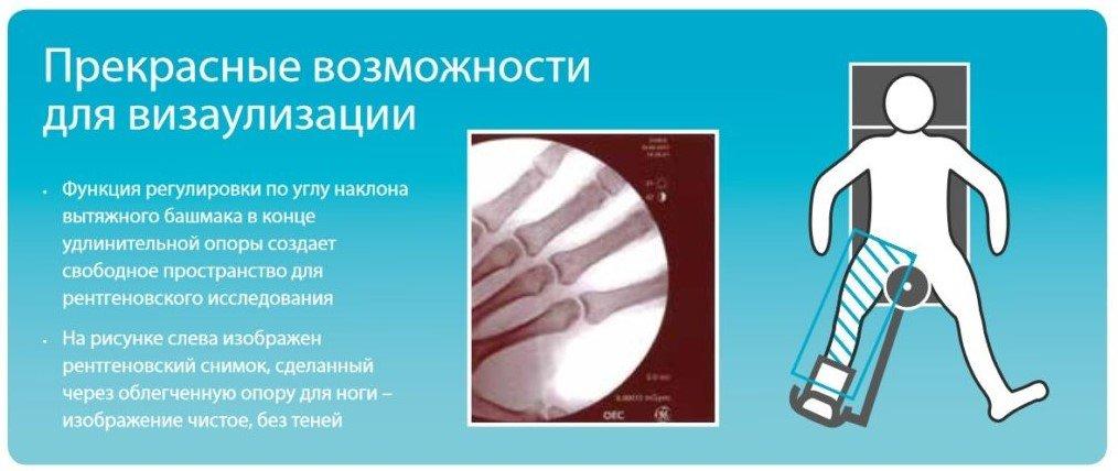 приспособления для ортопедии