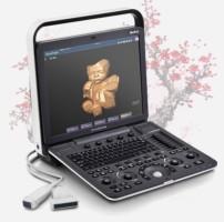 Ультразвуковой сканер S8Exp