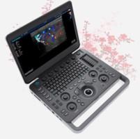 Ультразвуковой сканер S2N